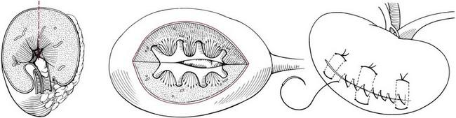 nephrotomy