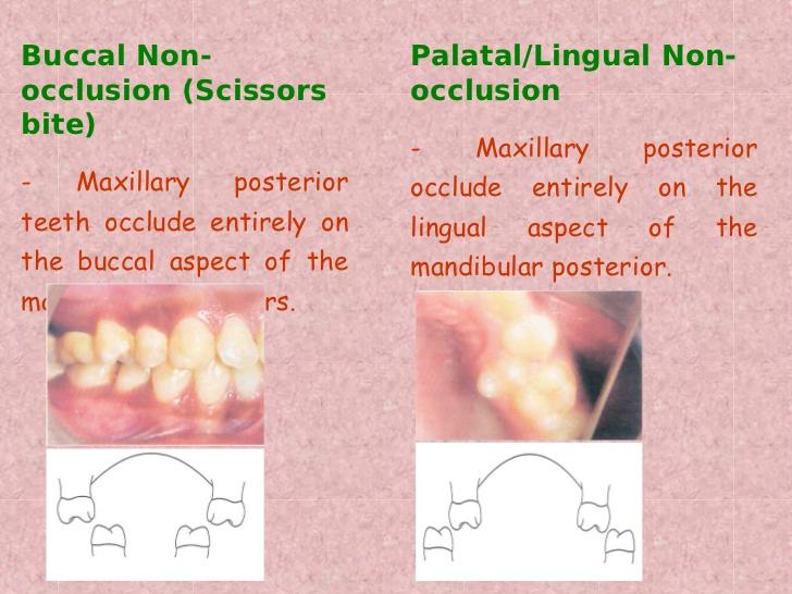 non-occlusion