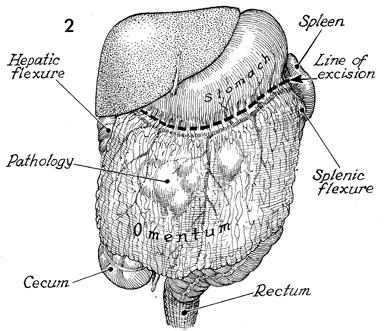 omentectomy