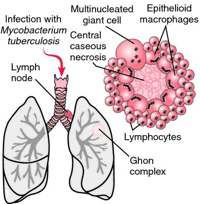 open tuberculosis