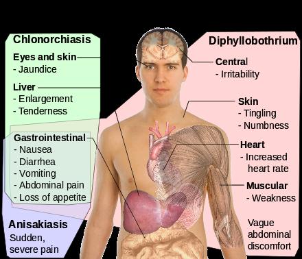opisthorchiasis