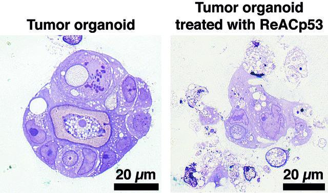 organoid tumor