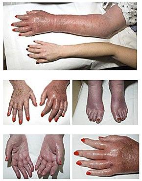 osler-vaquez disease