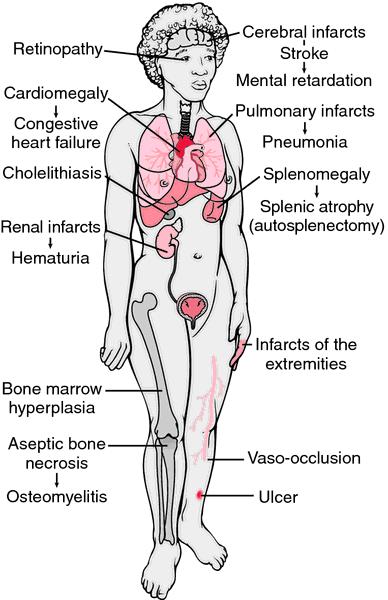 osteophlebitis