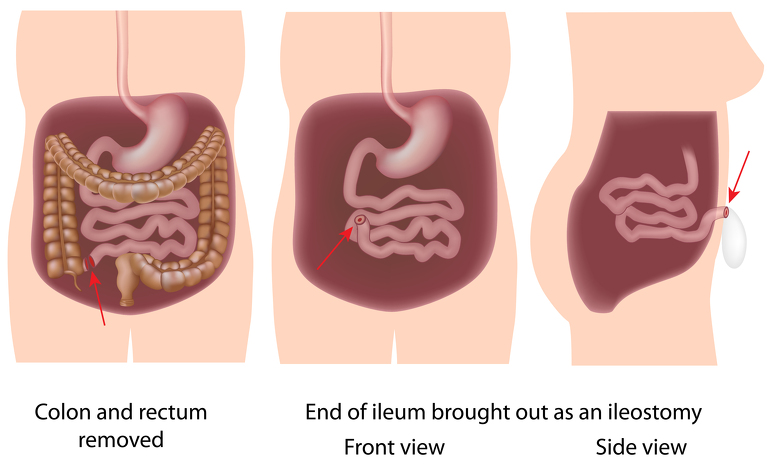 pancolectomy