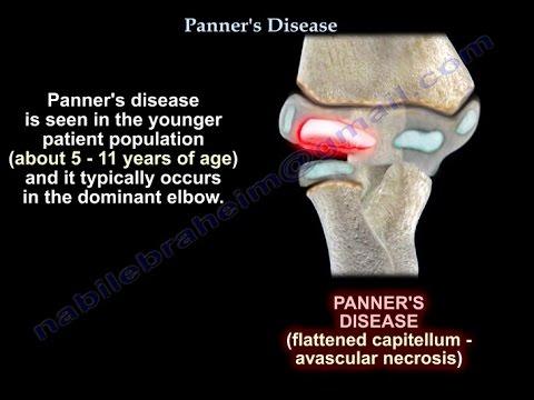 panner's disease