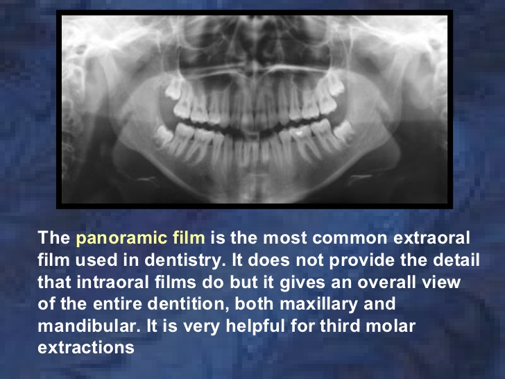 panoramic x-ray film