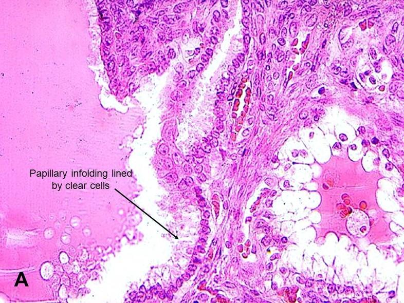 papillary cystic adenoma