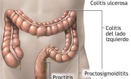 paracolitis