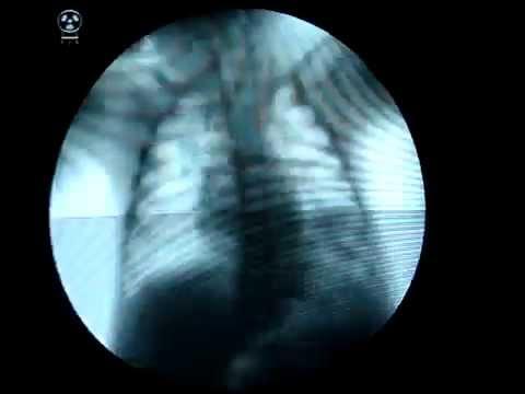 paradoxical diaphragm phenomenon