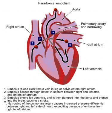 paradoxical embolism