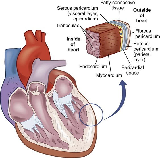 parietal endocarditis