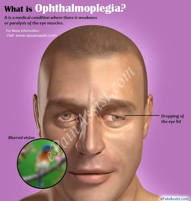 parinaud's ophthalmoplegia