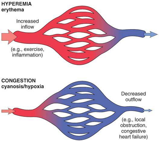 passive hyperemia