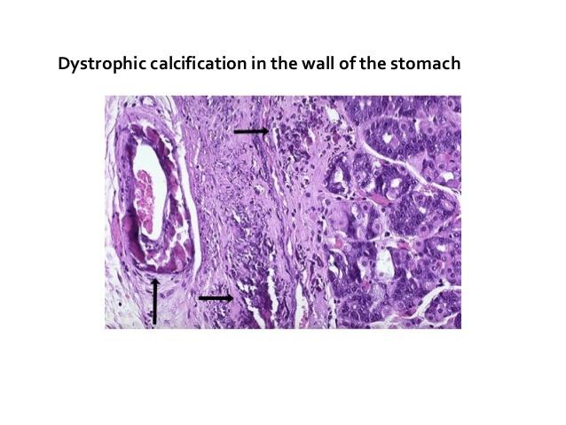 pathologic calcification