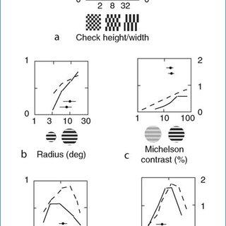 pattern sensitive epilepsy