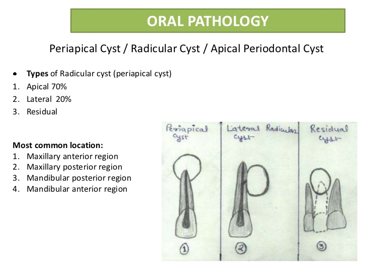 periapical periodontal cyst