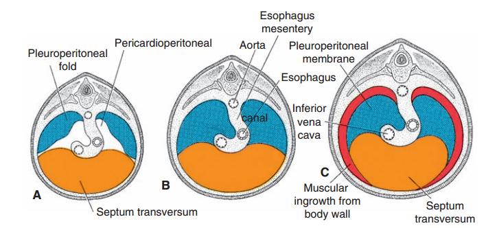 pericardioperitoneal