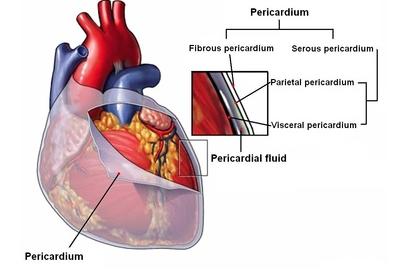 pericardiopleural