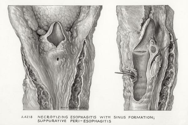 periesophagitis