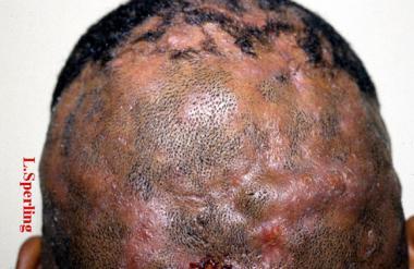 perifolliculitis