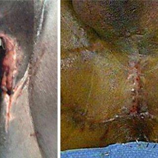 perineostomy