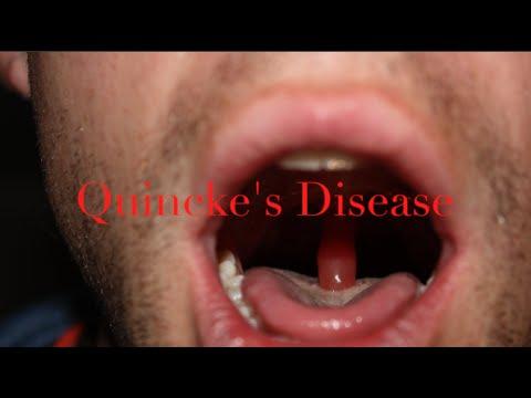 Quincke's disease