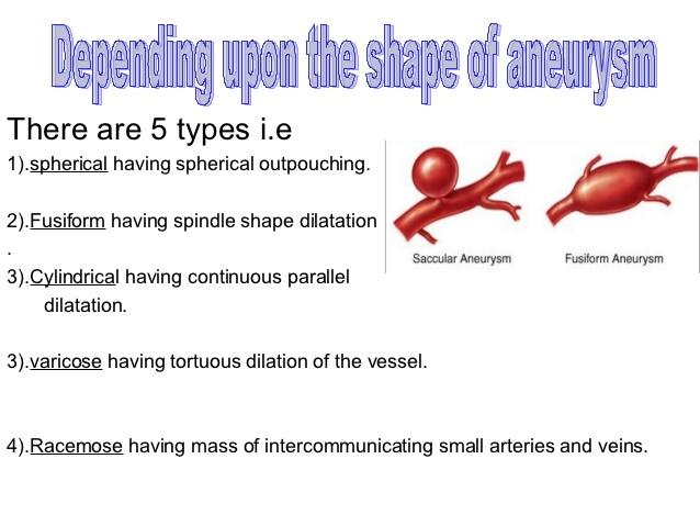 racemose aneurysm