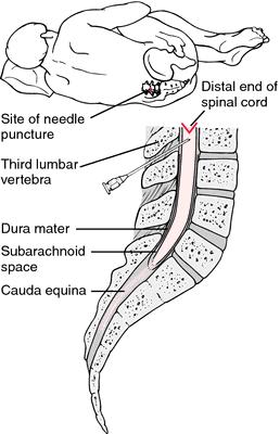 rachicentesis