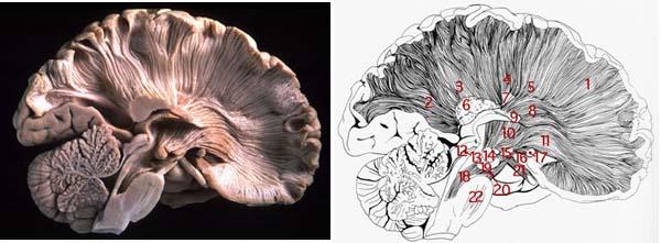 radiation of corpus callosum