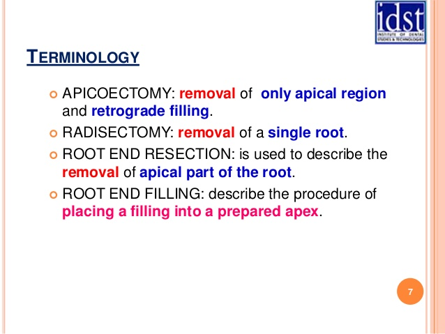 radisectomy