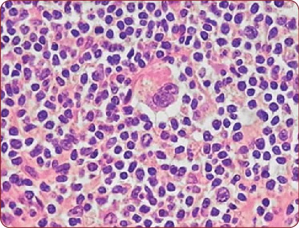reed-sternberg cell