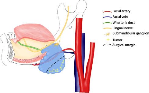 sialoadenectomy