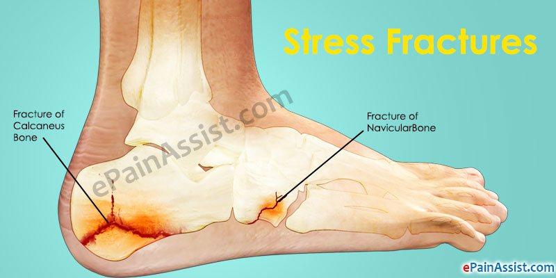side-foot