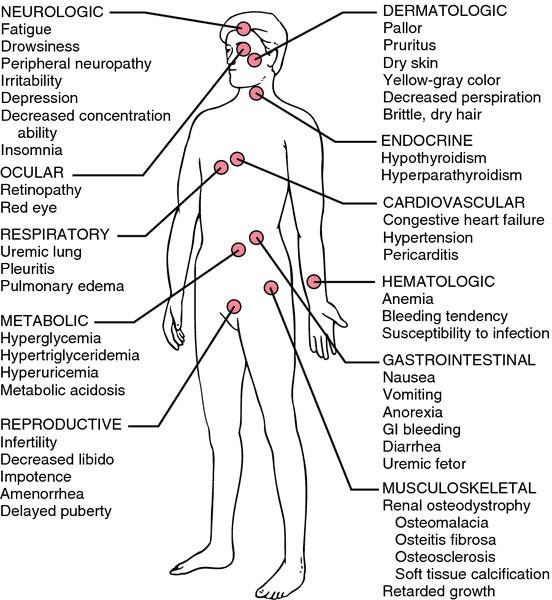 urecchysis