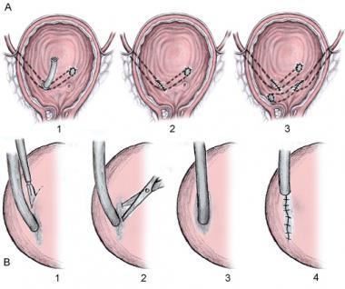 ureteroileoneocystostomy