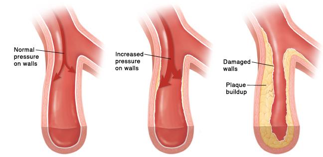 uronephrosis