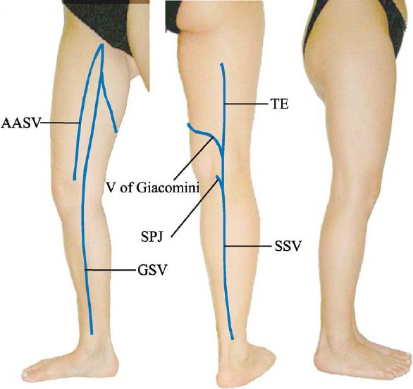 accessory saphenous vein
