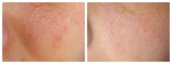 acne punctata