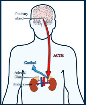 acth-producing adenoma