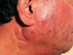 actinic dermatitis