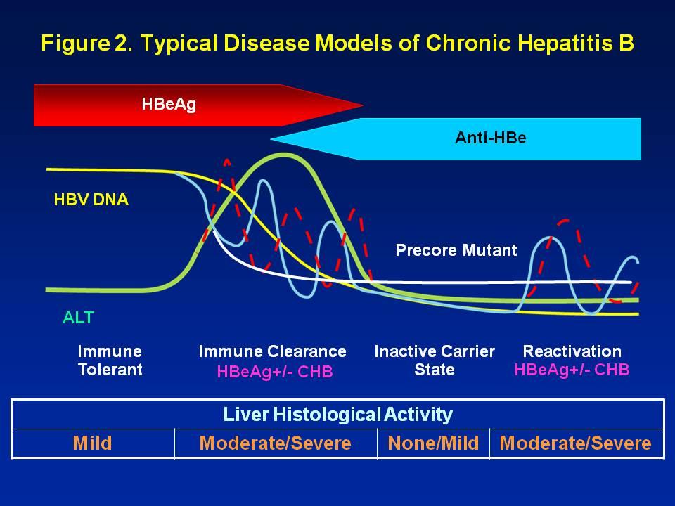 active chronic hepatitis