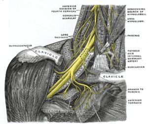 acute brachial radiculitis