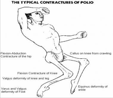 acute bulbar poliomyelitis
