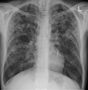 acute miliary tuberculosis