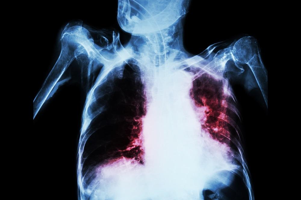 acute tuberculosis