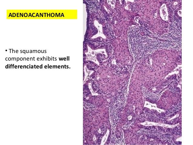 adenoacanthoma