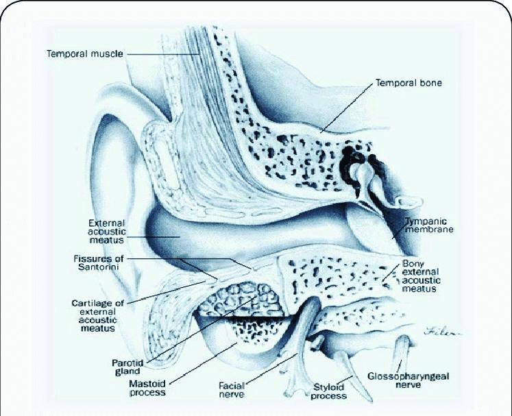 auricular fissure
