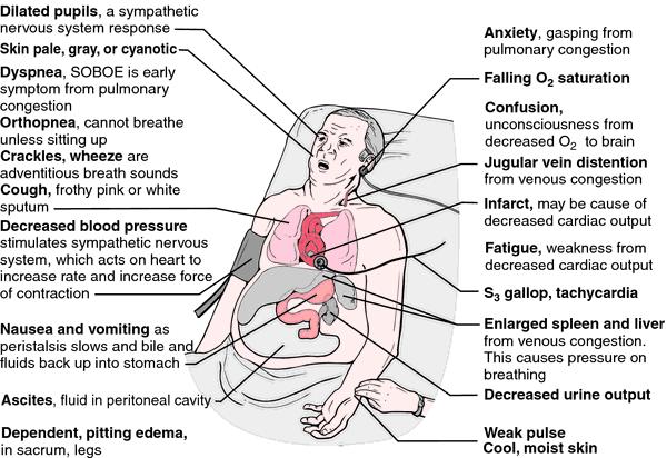 backward heart failure