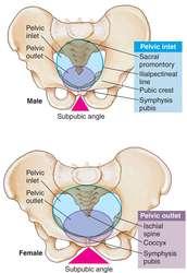 beaked pelvis